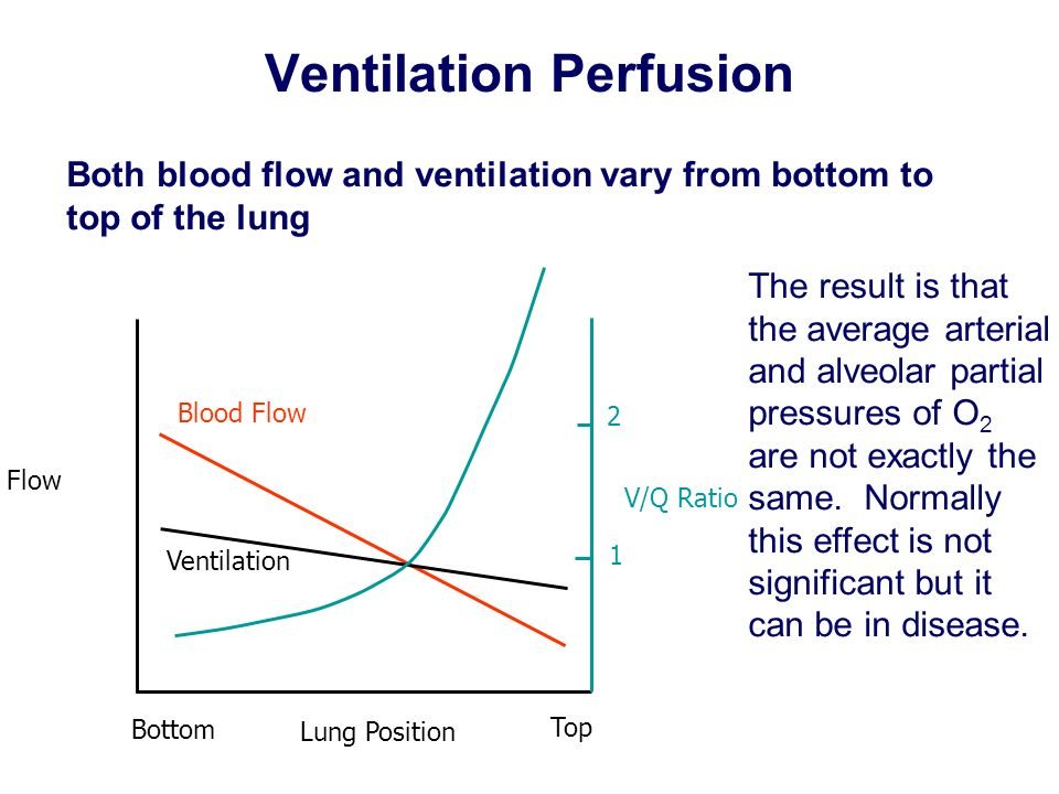 Ventilation Perfusion