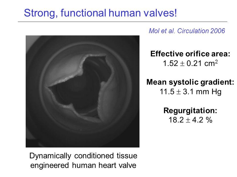 Effective orifice area: Mean systolic gradient: