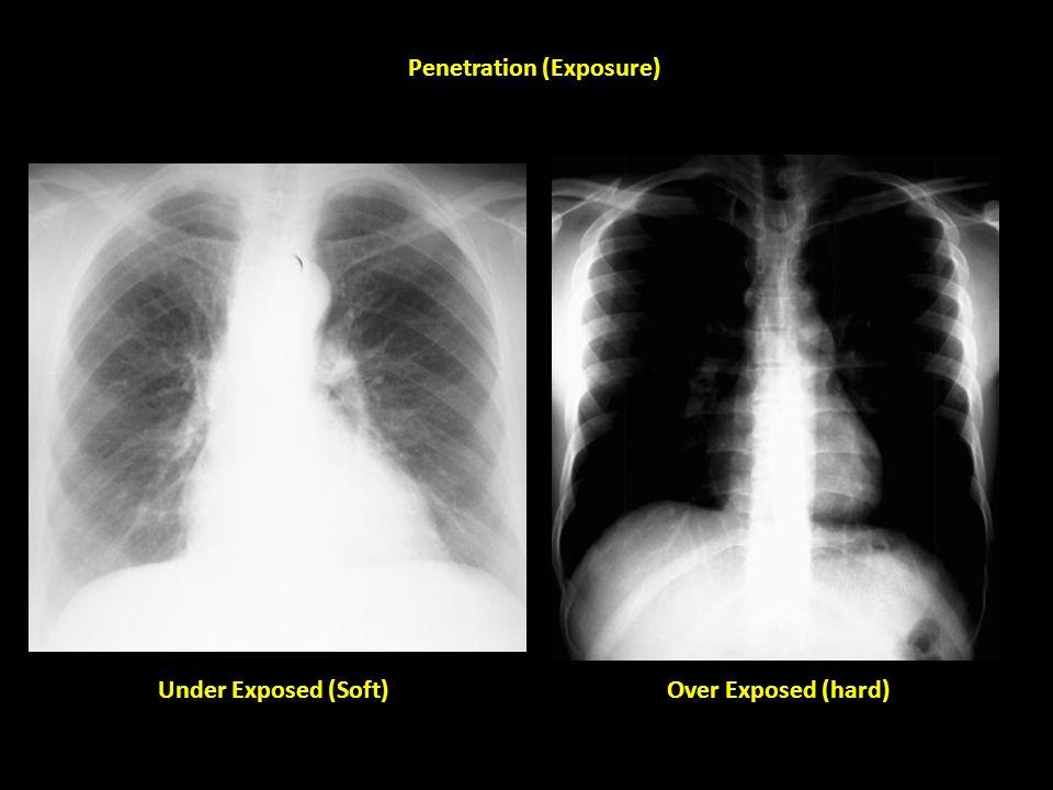 Penetration (Exposure)