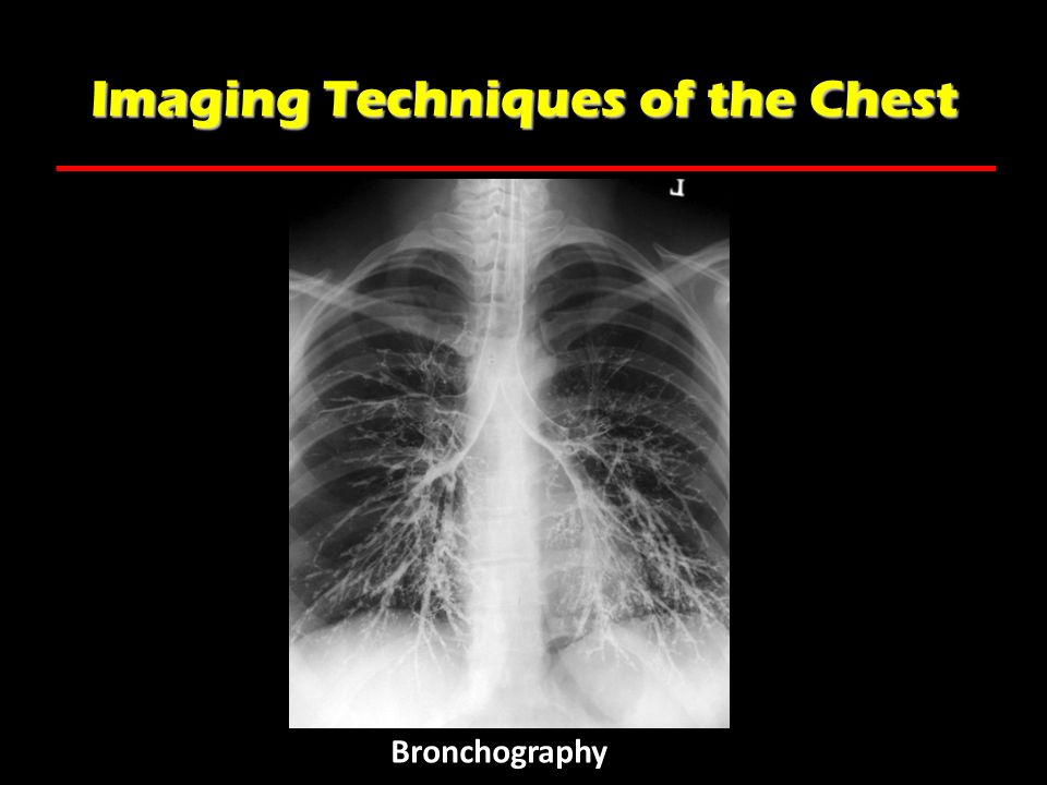 Imaging Techniques of the Chest