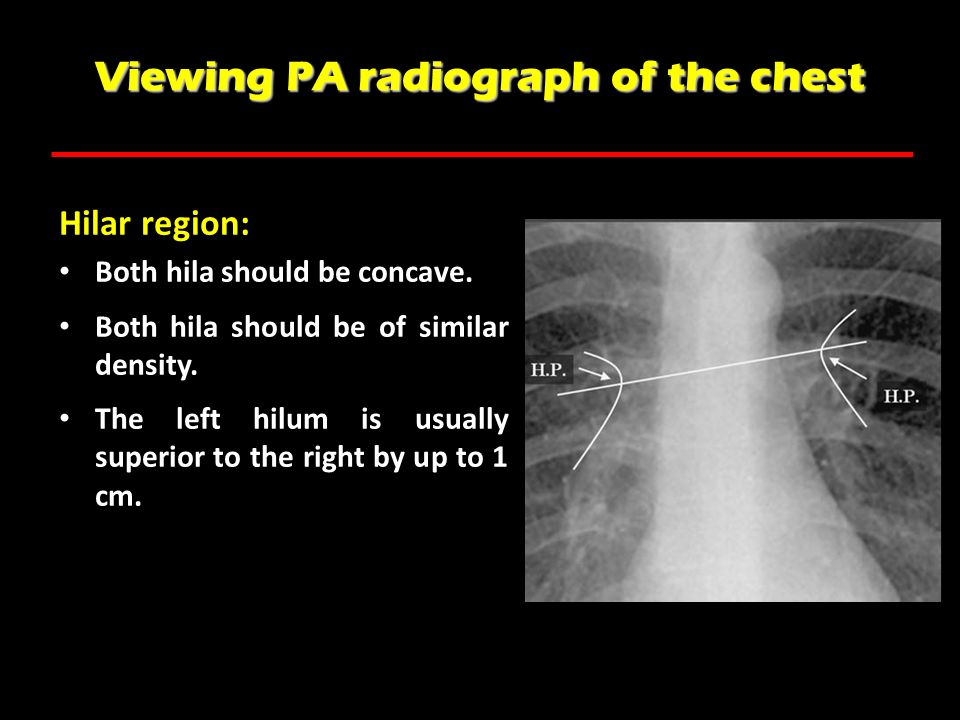 Viewing PA radiograph of the chest