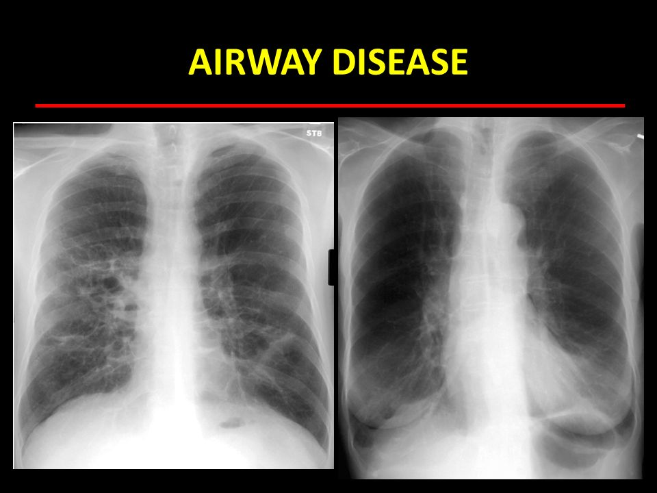 AIRWAY DISEASE