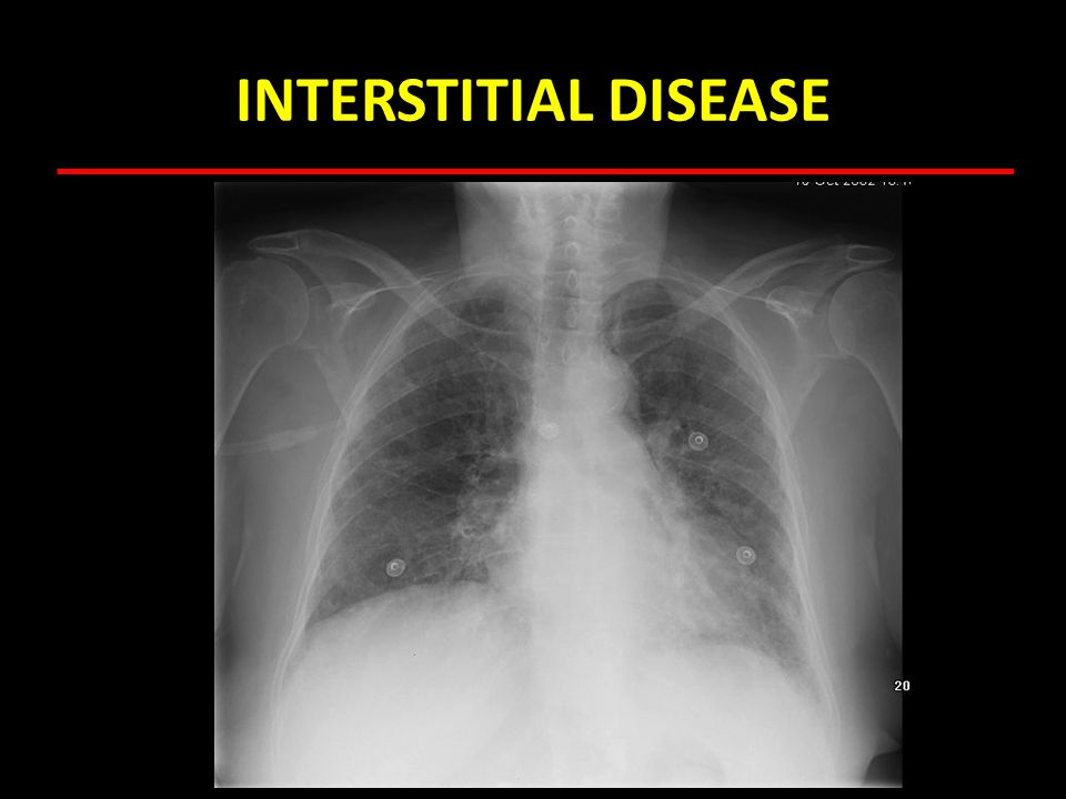 INTERSTITIAL DISEASE