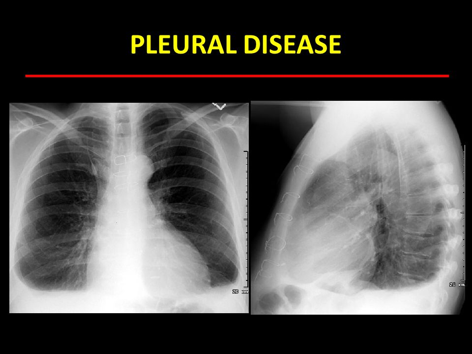 PLEURAL DISEASE