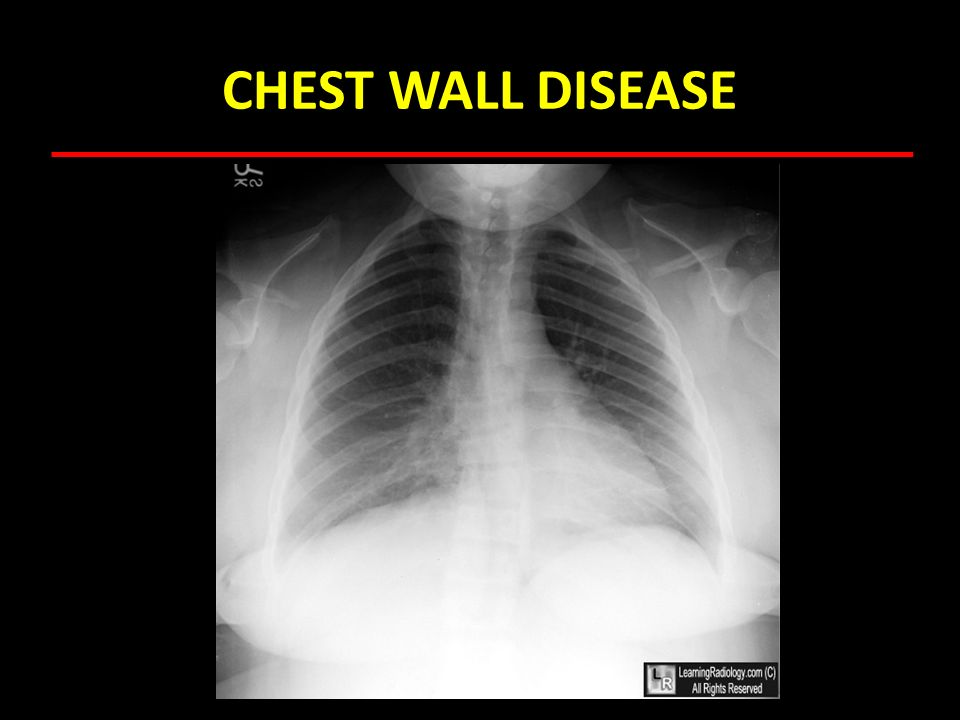 CHEST WALL DISEASE