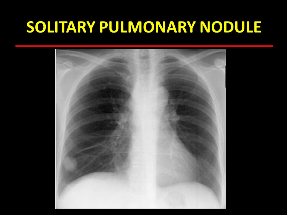 SOLITARY PULMONARY NODULE