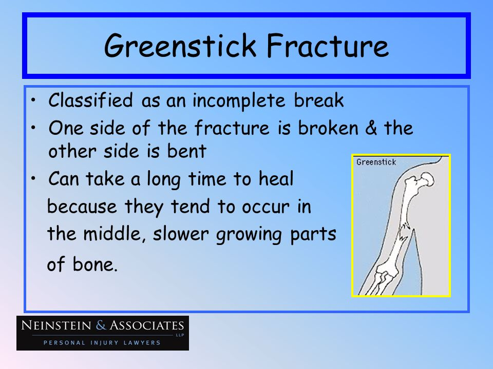 Greenstick Fracture Classified as an incomplete break