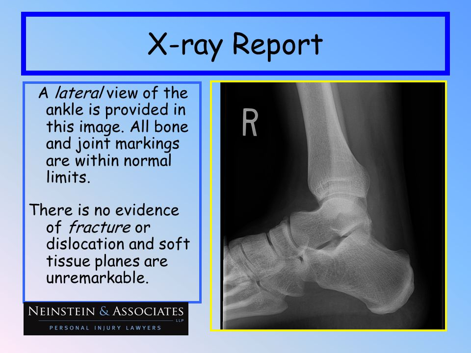 X-ray ReportA lateral view of the ankle is provided in this image. All bone and joint markings are within normal limits.