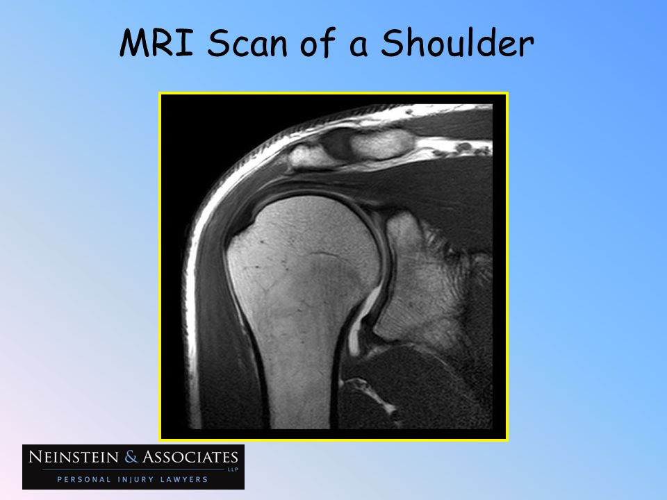 MRI Scan of a Shoulder