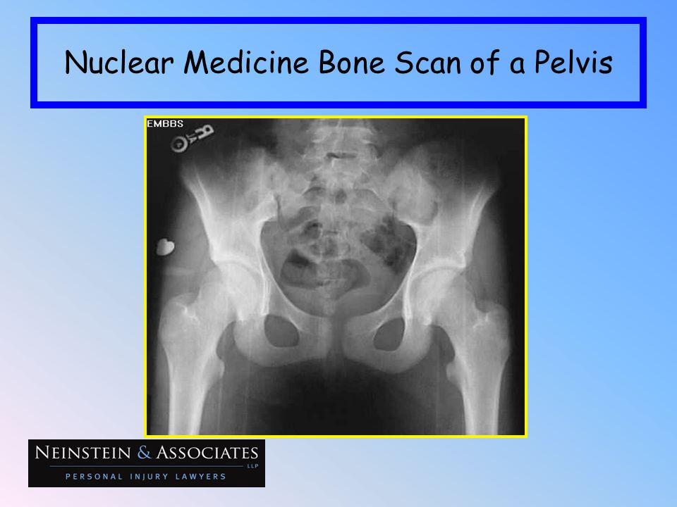 Nuclear Medicine Bone Scan of a Pelvis