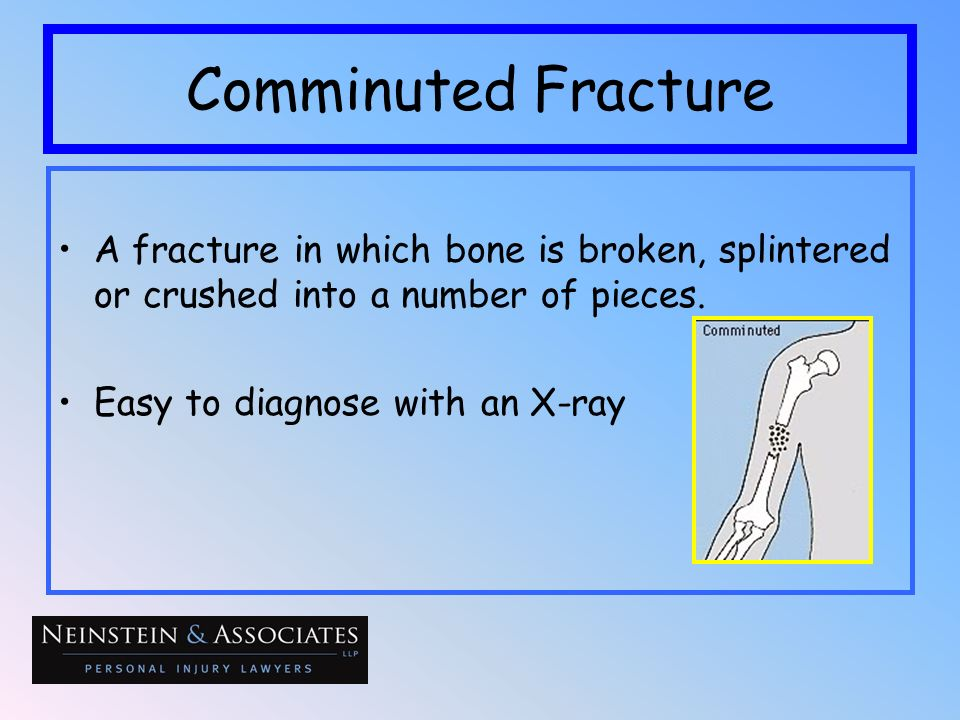 Comminuted FractureA fracture in which bone is broken, splintered or crushed into a number of pieces.