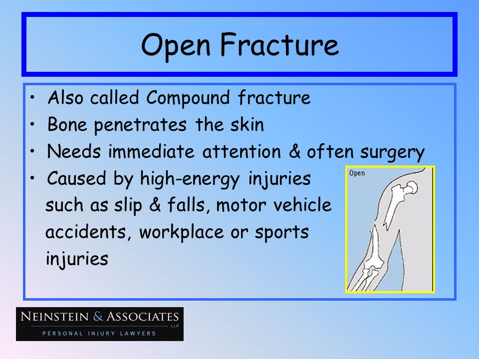 Open Fracture Also called Compound fracture Bone penetrates the skin