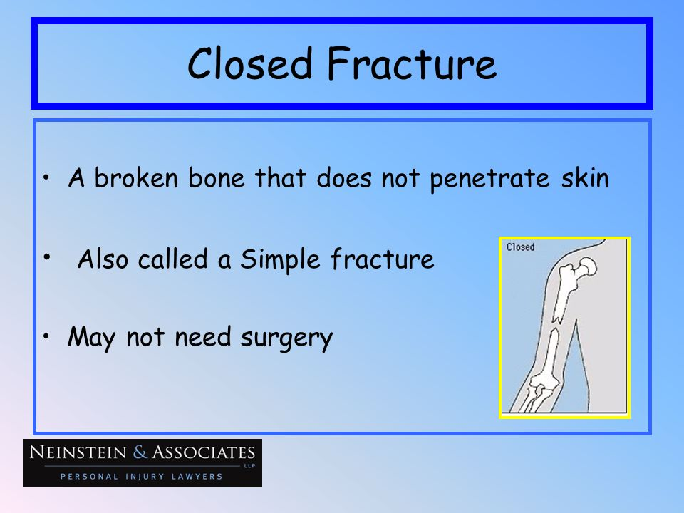 Closed Fracture Also called a Simple fracture