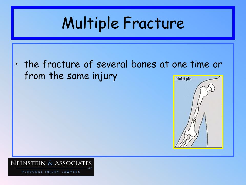 Multiple Fracture the fracture of several bones at one time or from the same injury