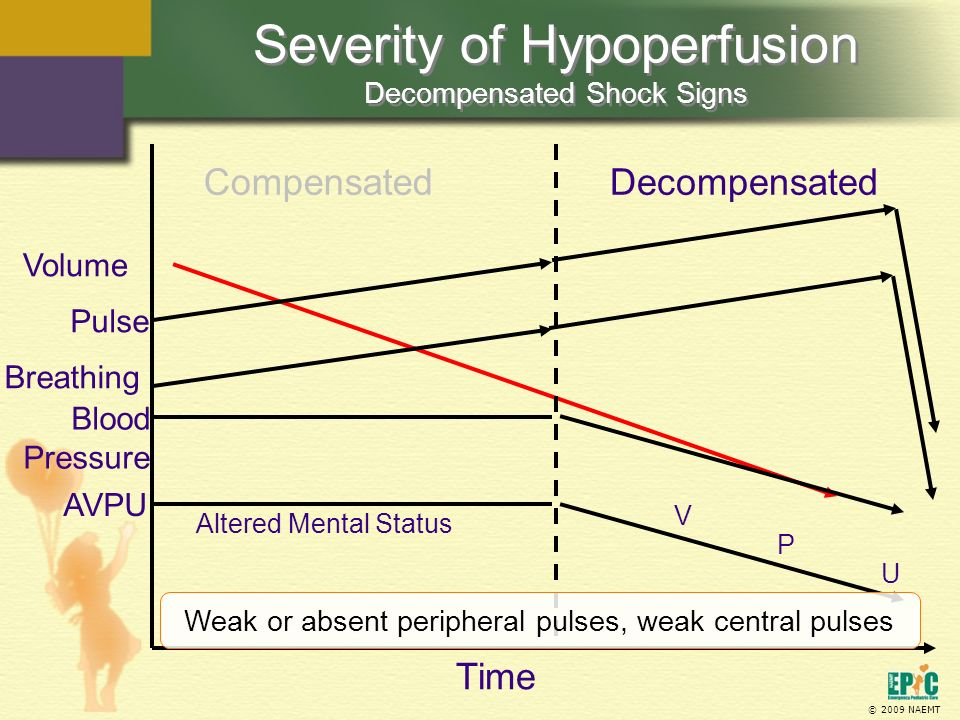 Severity of Hypoperfusion Decompensated Shock Signs