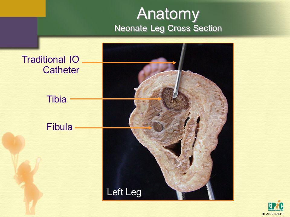 Anatomy Neonate Leg Cross Section