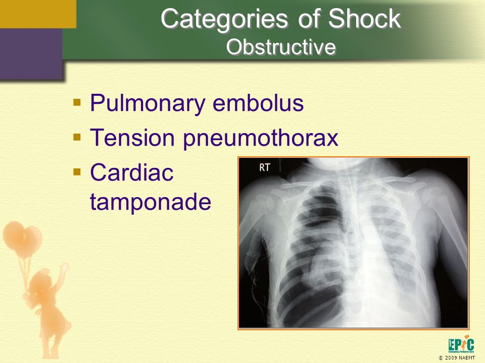Categories of Shock Obstructive