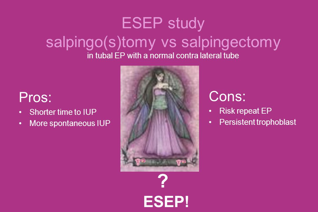 ESEP study salpingo(s)tomy vs salpingectomy in tubal EP with a normal contra lateral tube