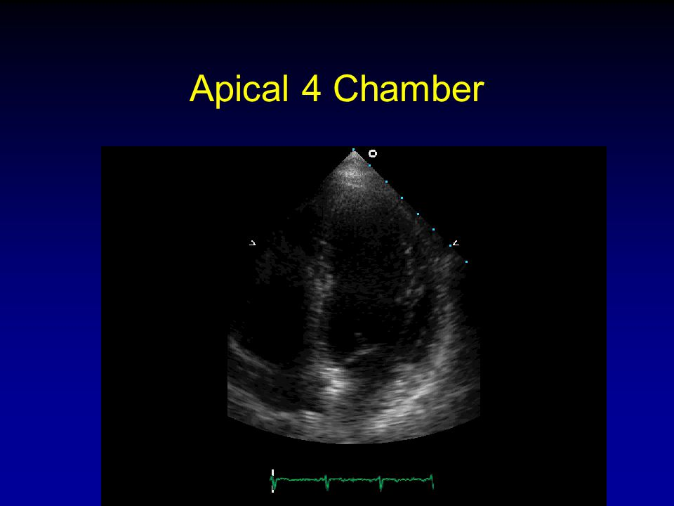 Apical 4 Chamber