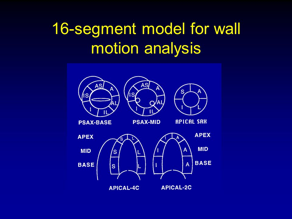 16-segment model for wall motion analysis