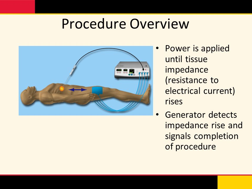 Procedure Overview Power is applied until tissue impedance (resistance to electrical current) rises.