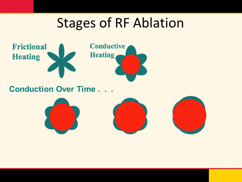 Stages of RF Ablation Conduction Over Time . . .