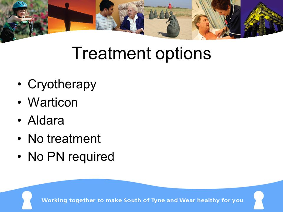 Treatment options Cryotherapy Warticon Aldara No treatment