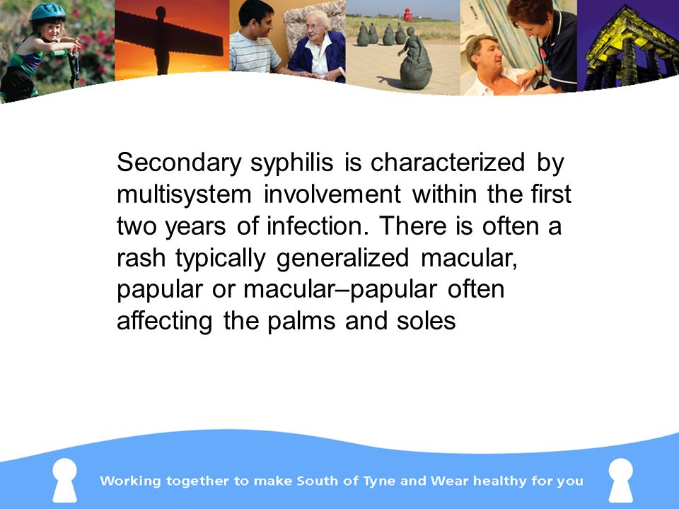 Secondary syphilis is characterized by multisystem involvement within the first two years of infection.