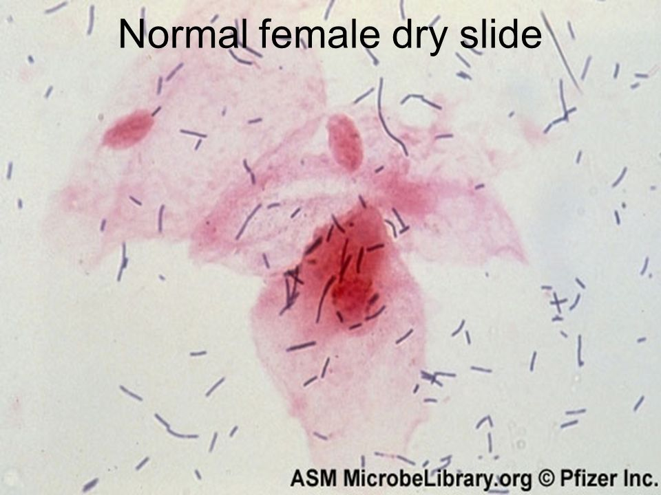 Normal female dry slide