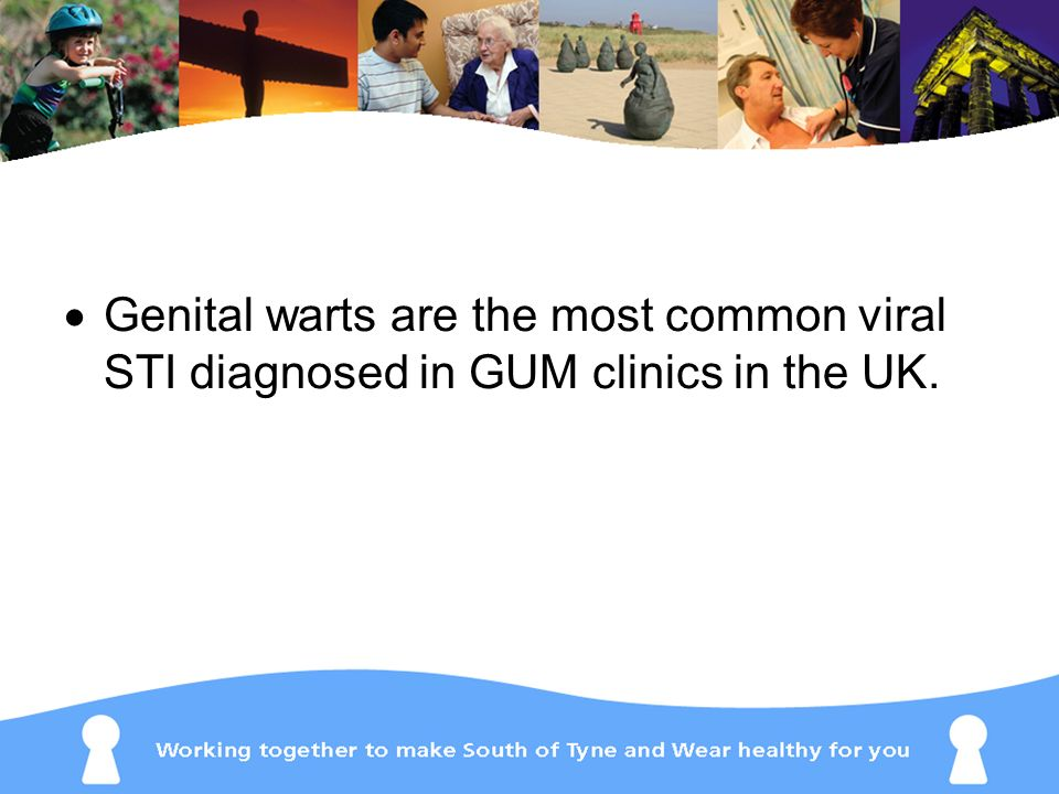 Genital warts are the most common viral STI diagnosed in GUM clinics in the UK.
