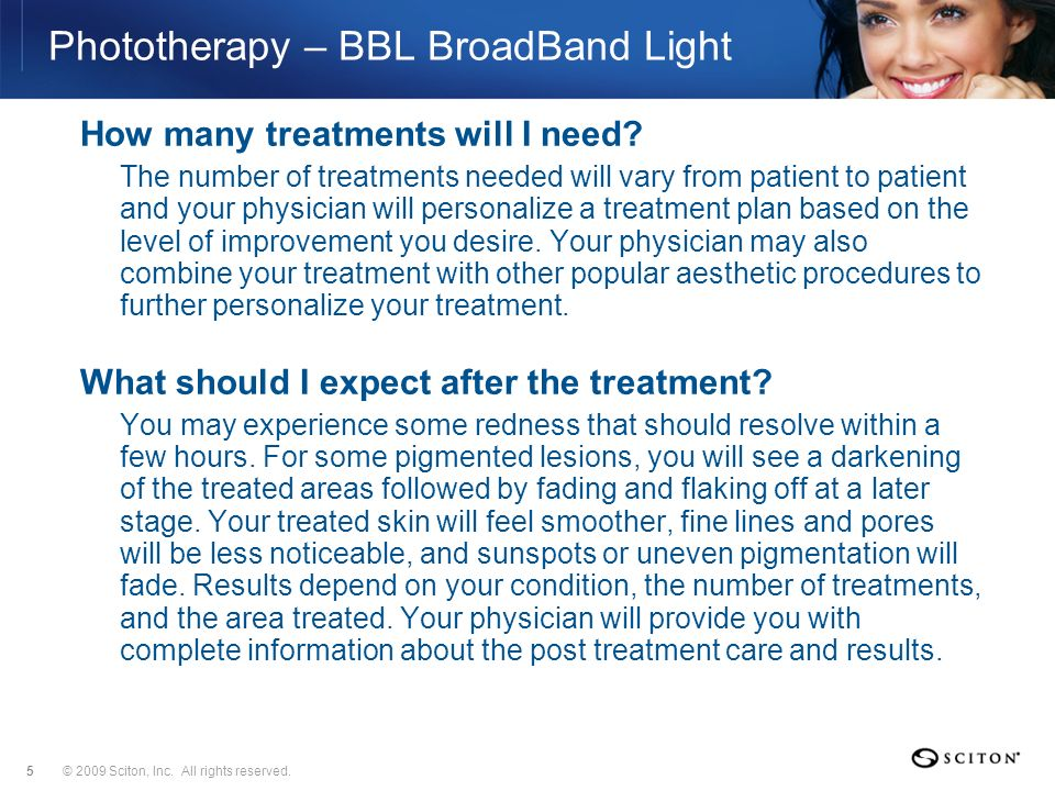 Phototherapy – BBL BroadBand Light