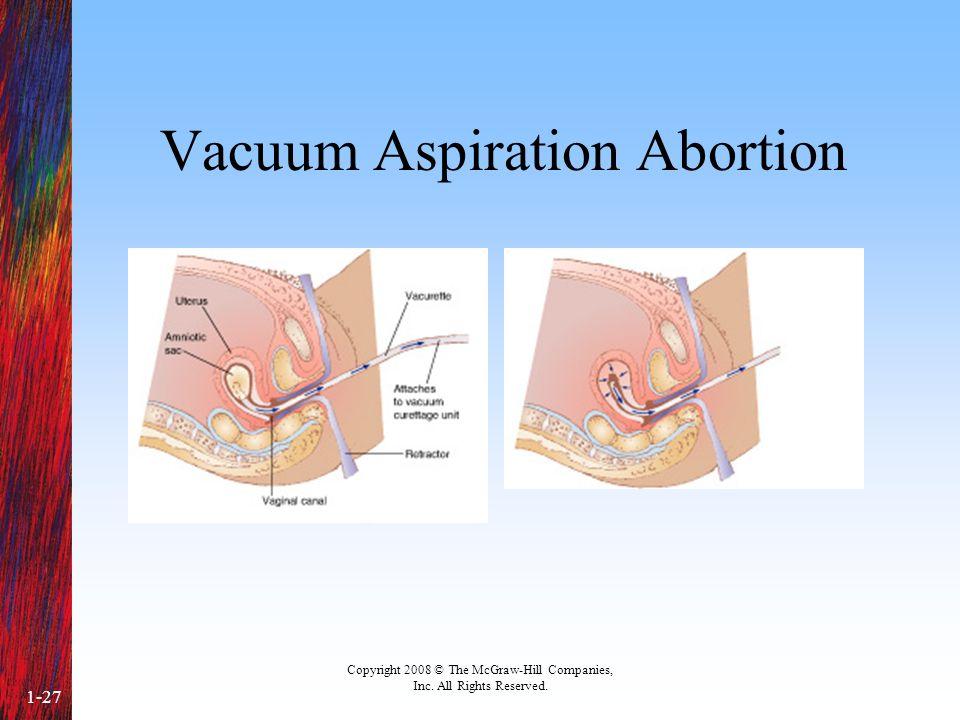 Vacuum Aspiration Abortion