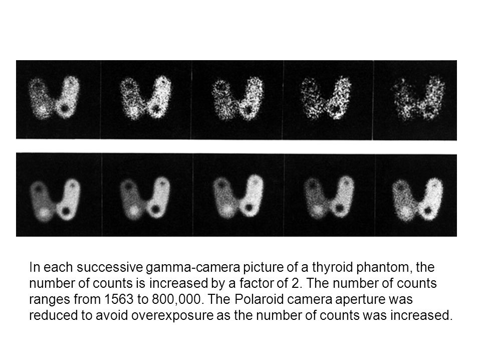 In each successive gamma-camera picture of a thyroid phantom, the number of counts is increased by a factor of 2.
