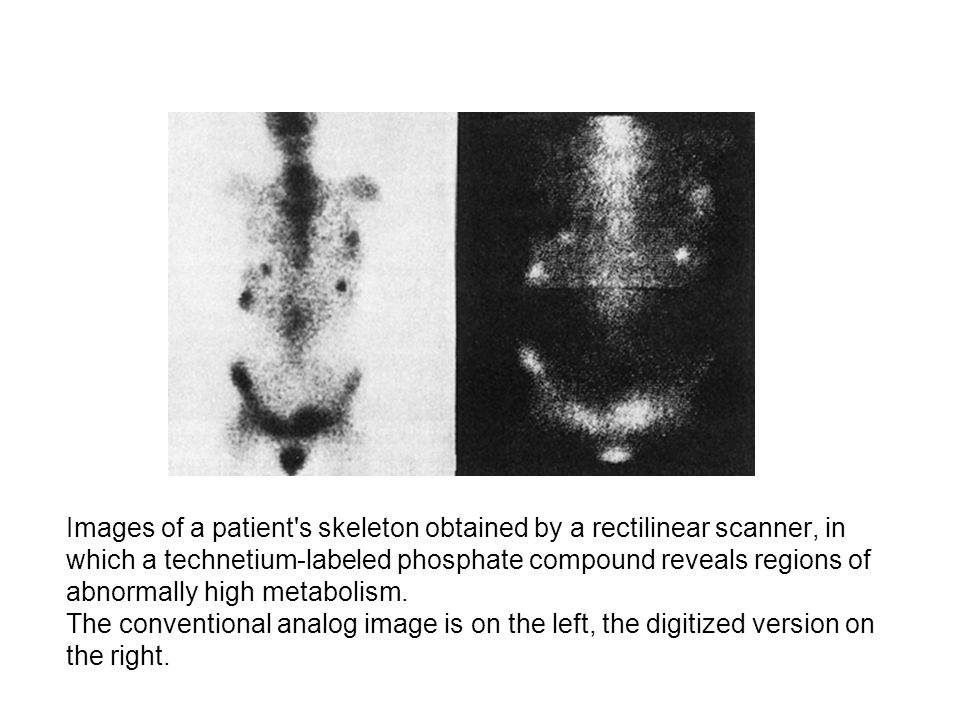 Images of a patient s skeleton obtained by a rectilinear scanner, in which a technetium-labeled phosphate compound reveals regions of abnormally high metabolism.