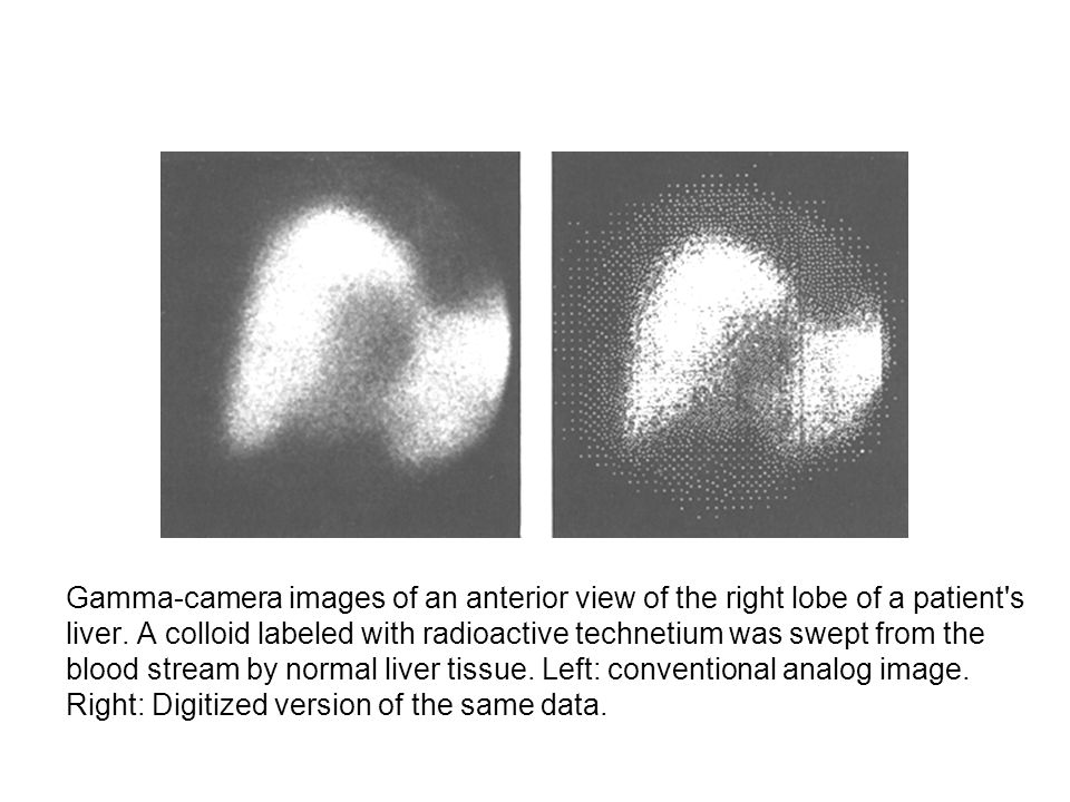 Gamma-camera images of an anterior view of the right lobe of a patient s liver.