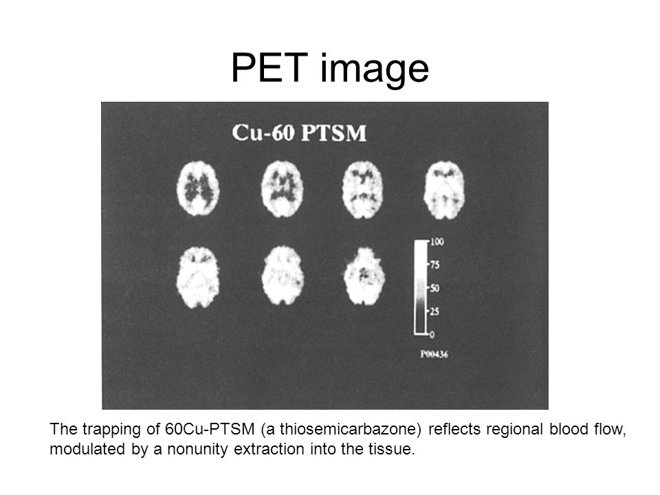 PET image The trapping of 60Cu-PTSM (a thiosemicarbazone) reflects regional blood flow, modulated by a nonunity extraction into the tissue.