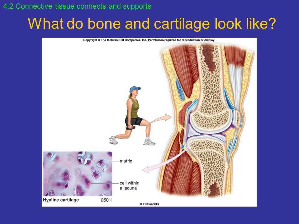 What do bone and cartilage look like