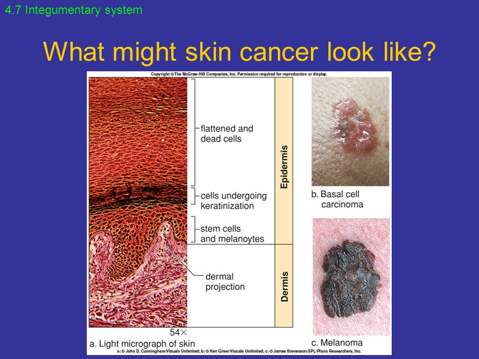 What might skin cancer look like
