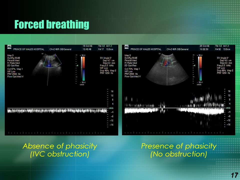 Forced breathing Absence of phasicity (IVC obstruction)