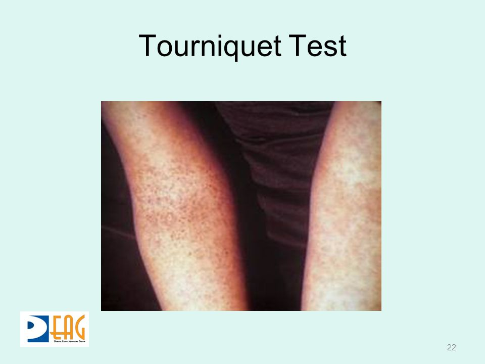 Tourniquet Test