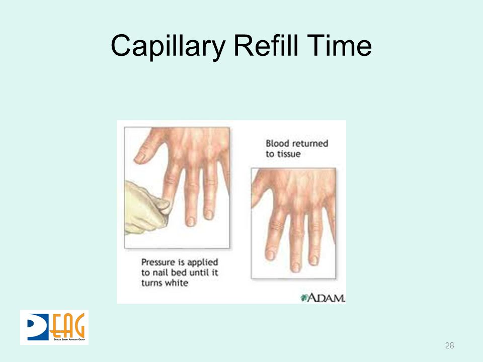Capillary Refill Time