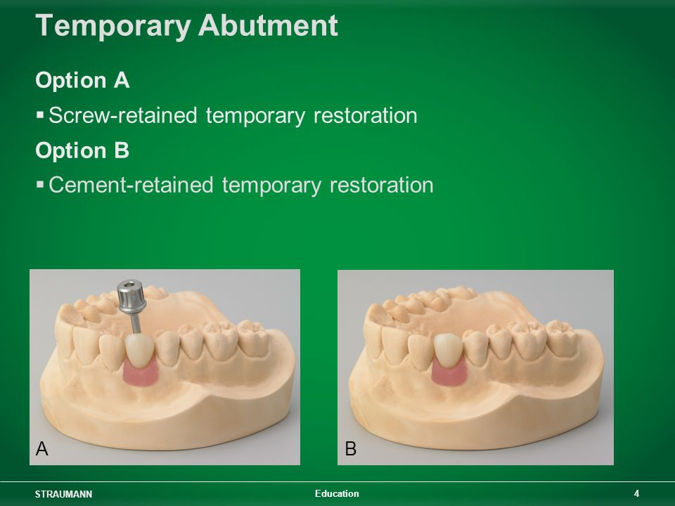 Temporary Abutment Option A Screw-retained temporary restoration