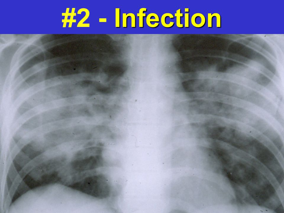 #2 - Infection