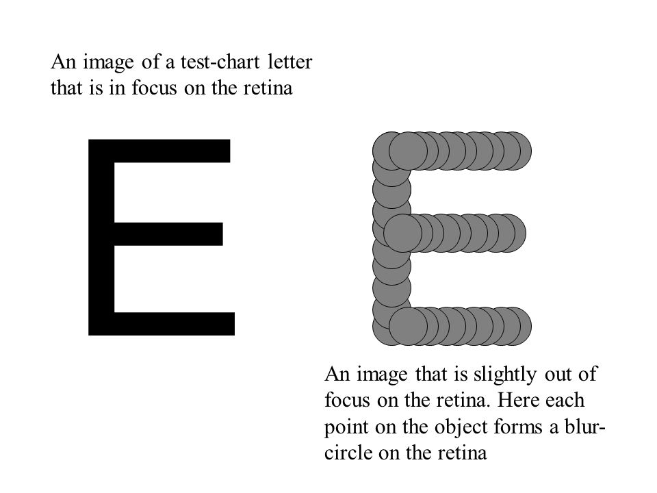 E E An image of a test-chart letter that is in focus on the retina