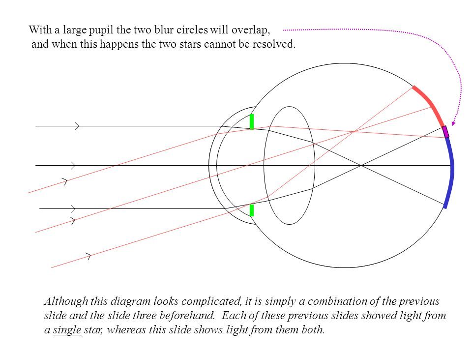 With a large pupil the two blur circles will overlap,