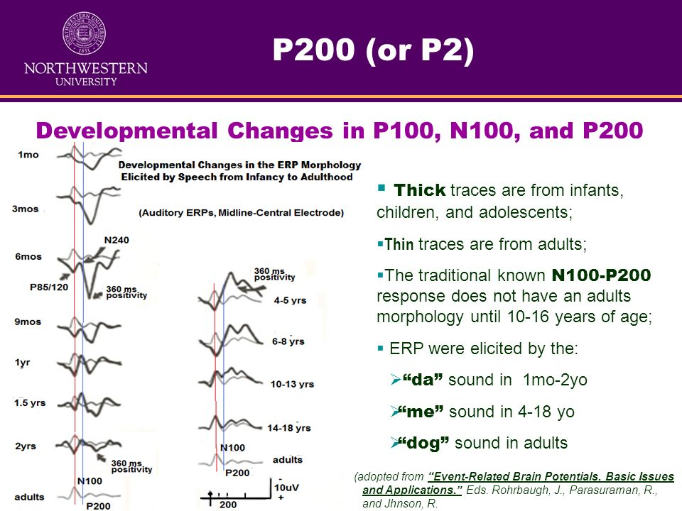 Developmental Changes in P100, N100, and P200 ERP Components
