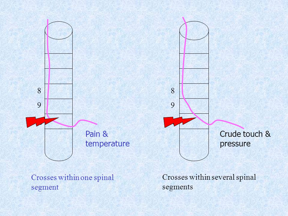 Pain & temperature. Crude touch & pressure. Crosses within one spinal. segment.