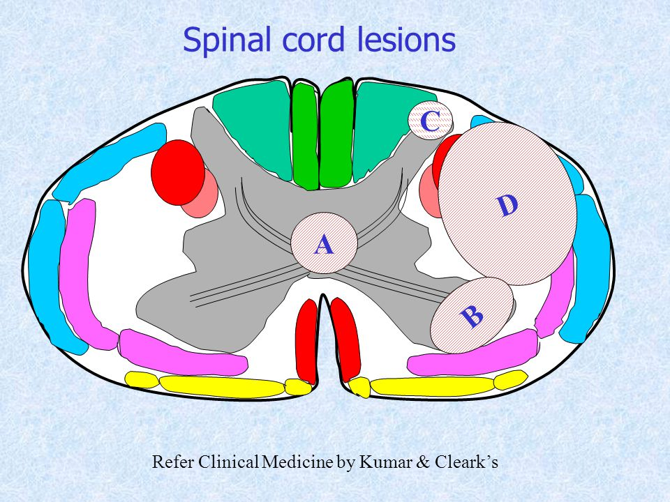 Spinal cord lesions C D A B