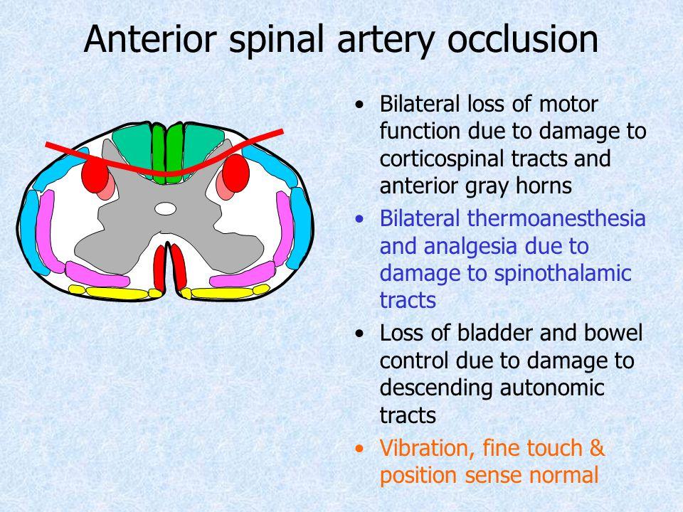 Anterior spinal artery occlusion