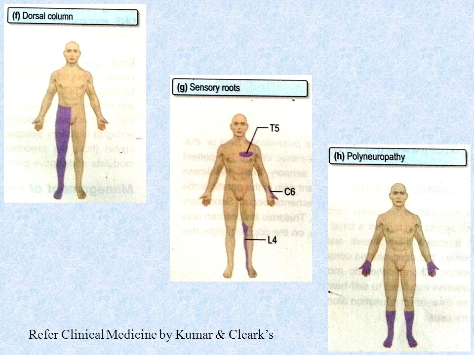 Refer Clinical Medicine by Kumar & Cleark's